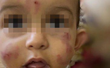 تعليم صبيا يفتح تحقيقاً في حادثة رضيع حضانة العيدابي